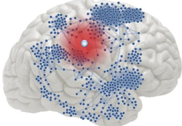 BRAIN SCIENCES_epilepsy2