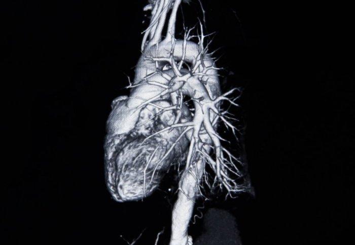 Cardiovascular_Heart