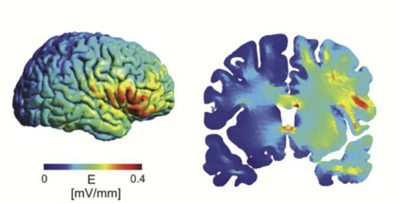 modelling of electric current over frontal lobe