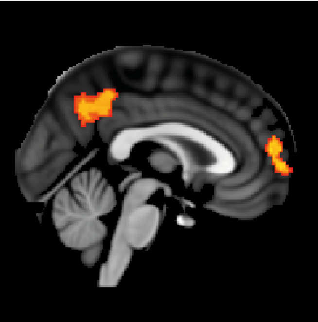 Lucia-Li-et-al-Abnormal_brain_activation
